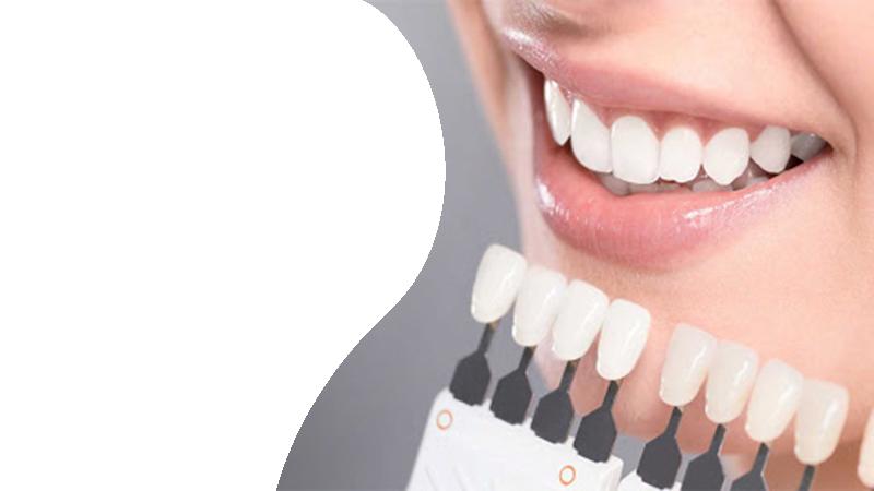 Чистка и отбеливание зубов в Гомеле