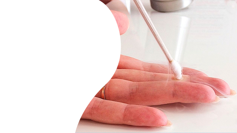 Удаление бородавок азотом в Гомеле