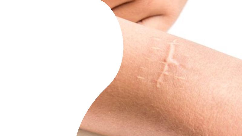 Удаление шрамов и рубцов азотом в Гомеле